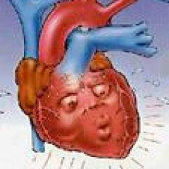 afib treatment Heart