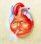 Ablation For Atrial Fibrillation