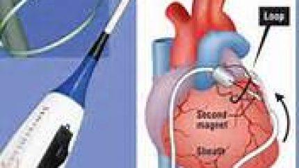 Atrial Fibrillation on the Rise