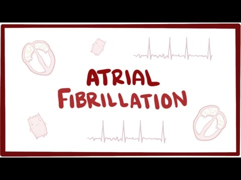 What is Atrial fibrillation and Why do I have it