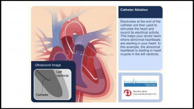 Catheter Ablation Animation Video