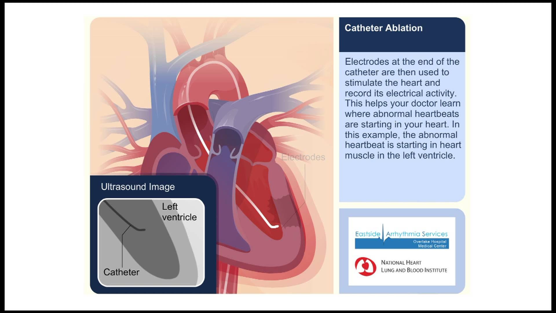 Catheter Ablation Animation Video