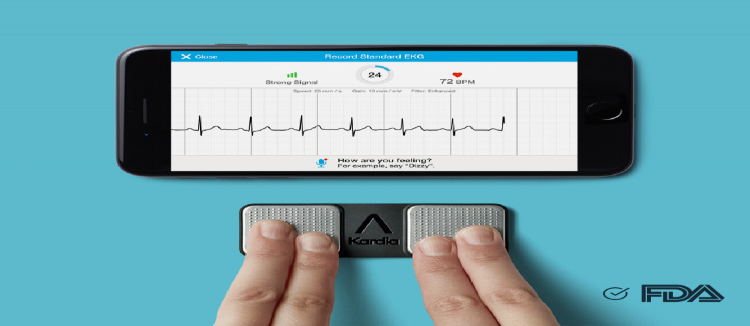 AliveCor Kardia Mobile2