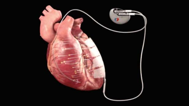 heart-regeneration-implant-1